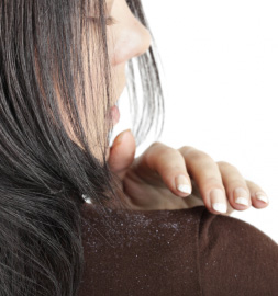 Top 10 Best Anti Dandruff Shampoos in India